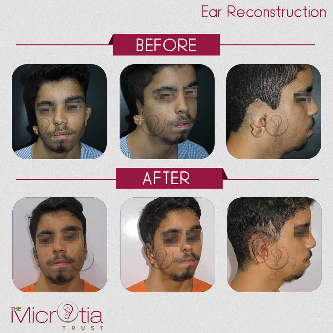 ear reconstruction surgery before and after